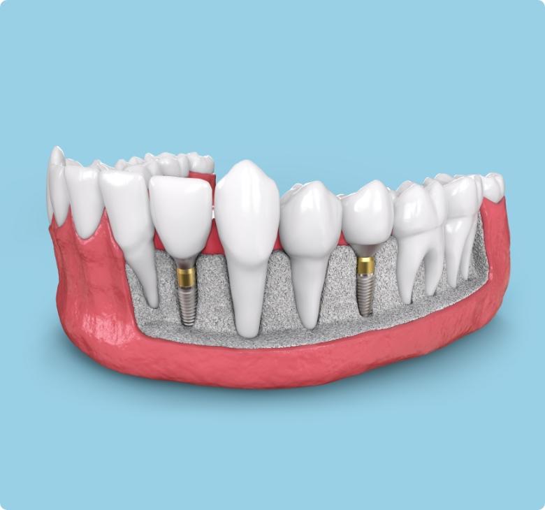 Les implants dentaires: une option durable et naturelle